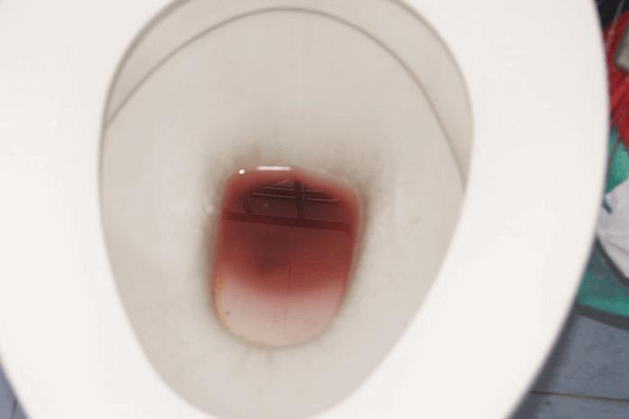 кровянистые выделения у мужчин из пениса